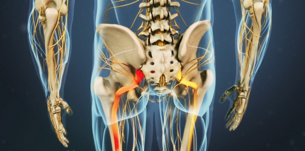Animation of low back & pelvis - radiating low back pain and sciatica